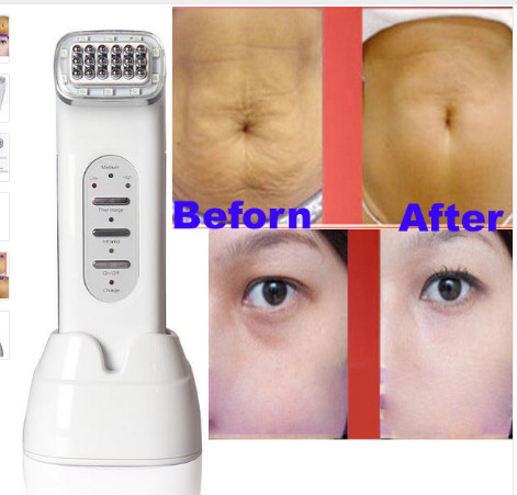 radio frequency facial treatment reviews