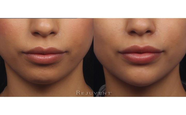 non surgical chin augmentation reviews