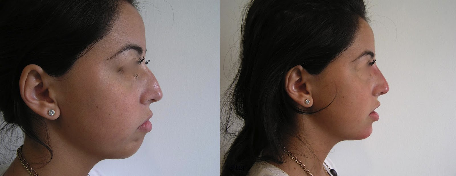 non surgical chin augmentation reviews