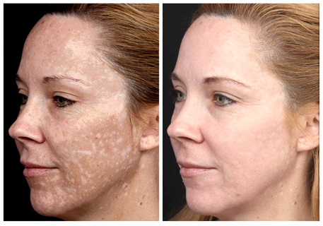 tretinoin reviews for dark spots